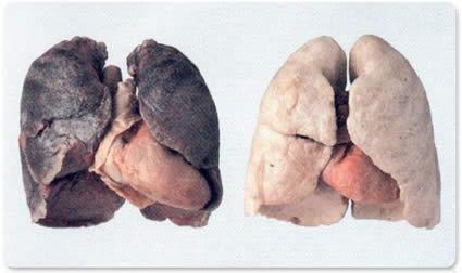 Imagem de pulmão com e sem cancro. Vacina pode ser salvação,