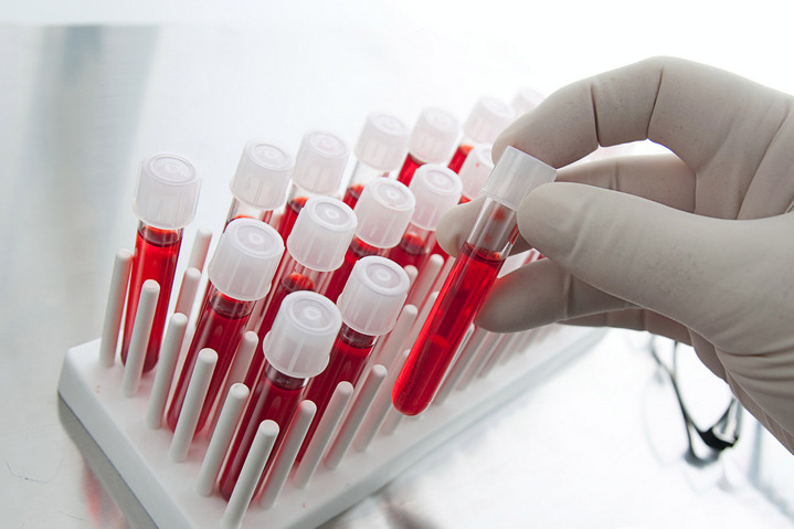 sangue artificial