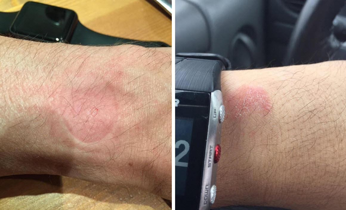 d51ce6d7534 Smartwatches estão a provocar queimaduras no pulso