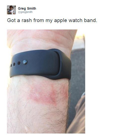 da79adeb32a Para além do Apple Watch outras queixam surgem sobretudo do FitBit