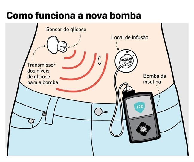 Medtronic Artificial Pancreas >> MiniMed 670G – Dispositivo que funciona como um pâncreas ...