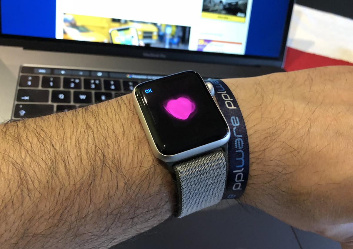 62053f2550f A Apple está a dar passos largos para tornar o seu smartwatch num  instrumento médico. Com isso