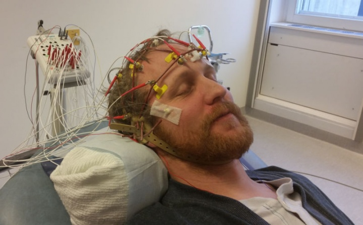 eletroencefalogramas
