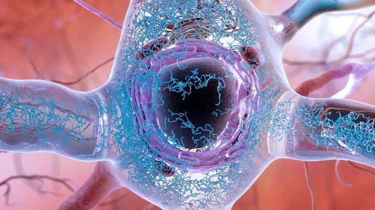 Imagem processo que leva ao Alzheimer