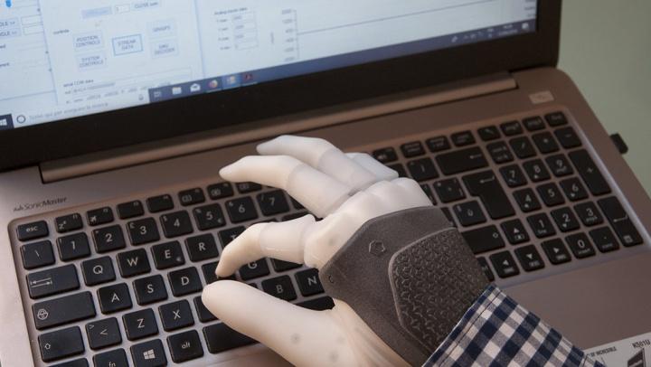 Mulher recebe mão robótica com implantes diretos aos nervos