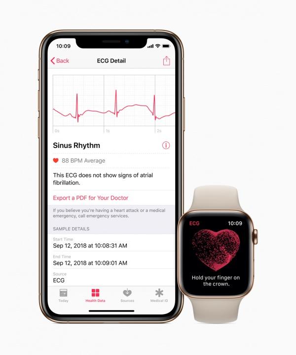 Tem um Apple Watch 4? Já pode realizar um eletrocardiograma em Portugal