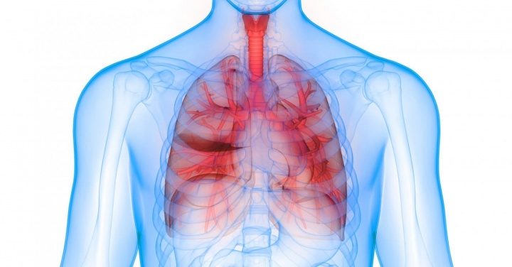 Imagem Inteligência Artificial da Google no combate ao cancro do pulmão