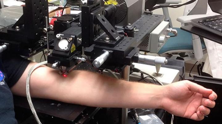Imagem de raio laser a destruir cancro que é transportado pelo sangue
