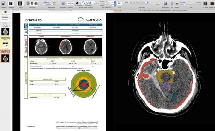 Portugal: IA avalia a evolução da doença em pessoas com esclerose múltipla