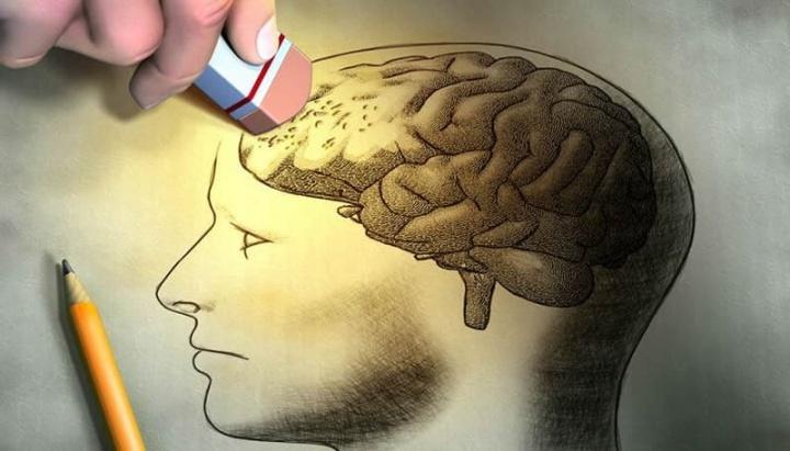 Imagem doença de Alzheimer detetada precocemente até 20 anos