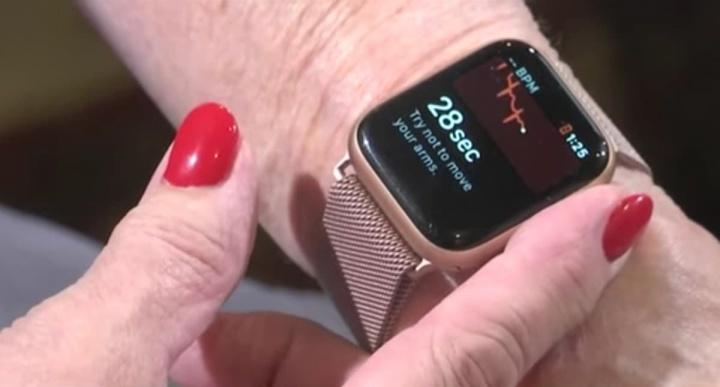 Imagem Apple Watch Serie 4 que detetou Fibrilhação auricular a uma mulher do Alabama