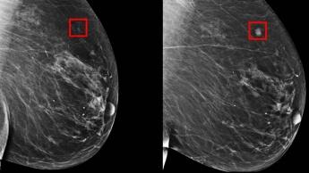 Imagem mamografia que deteta cancro da mama