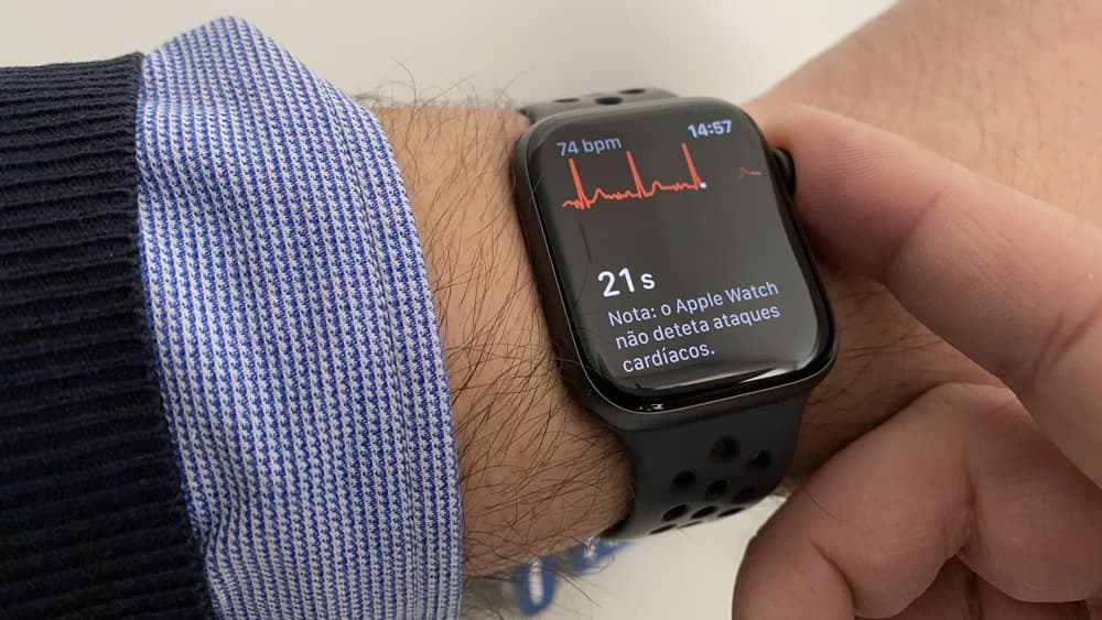 """Apple Watch: Doctor found solution to do a """"complete electrocardiogram"""""""