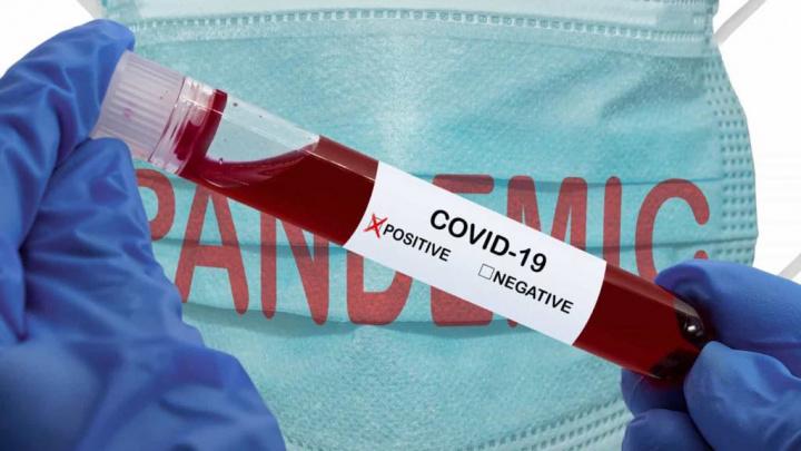 Covid-19: Por cada 100 casos em Itália, Portugal terá sete diz estudo