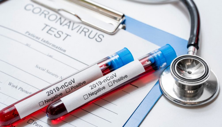 COVID-19: Tem sintomas? Instale esta app para os médicos o ajudarem
