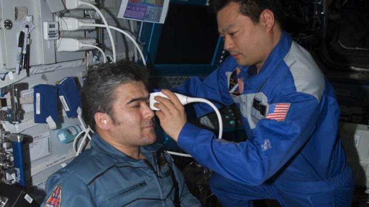 Imagem de exame ocular a astronauta da NASA na estação espacial internacioonao (ISS)