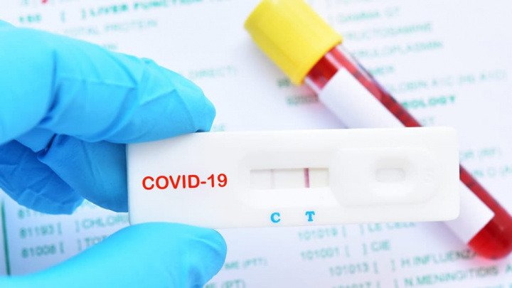 Imagem teste anticorpos contra a COVID-19