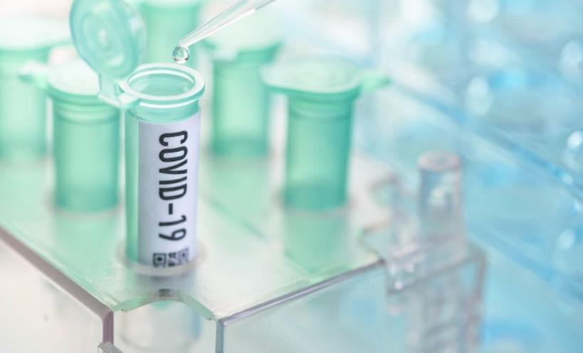 COVID-19: Quais os testes de diagnóstico que se podem realizar?