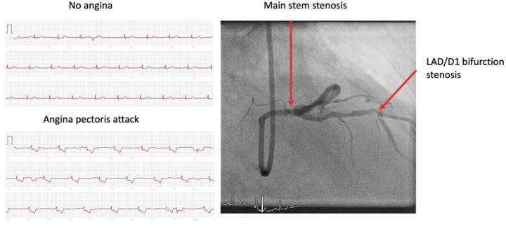 Imagem relatório do ECG que mostra problema cardíaco