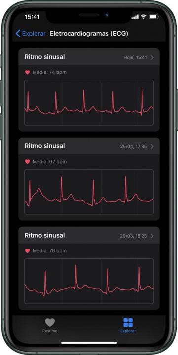 Imagem relatório ECG no iPhone app Saúde