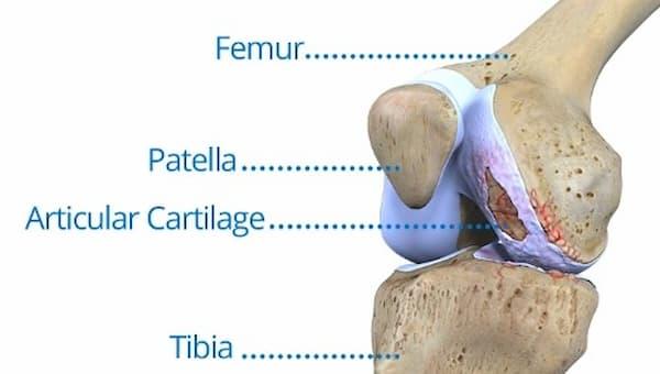 Imagem de joelho com lesão na cartilagem que poderá ter hidrogel