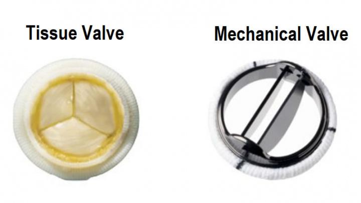 Imagem de válvula mecânica e da válvula de tecidos de animais