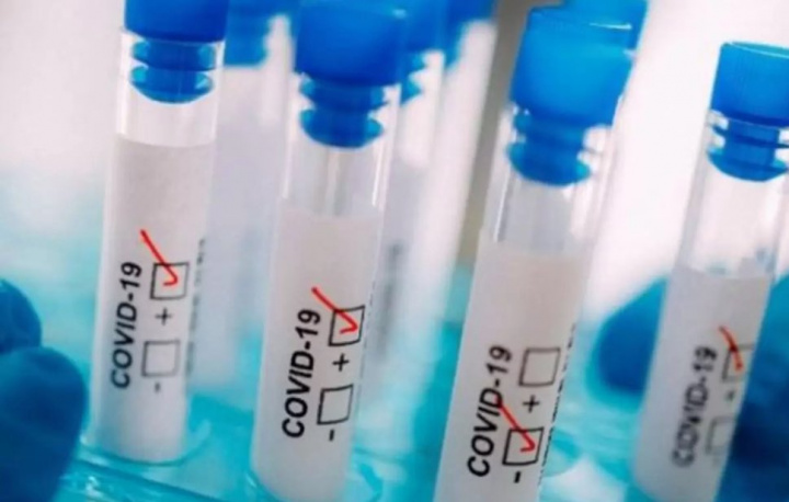 COVID-19: Apenas 2,9% da população portuguesa com anticorpos