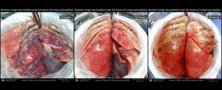 Técnica poderá revolucionar a medicina dos transplantes