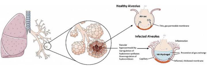 Imagem do esquema da reação do corpo em excesso