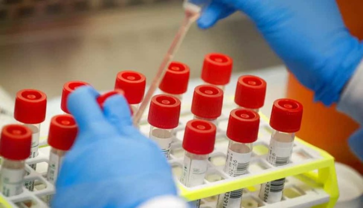 COVID-19: Testes de antigénio com resultado entre 10 a 30 minutos