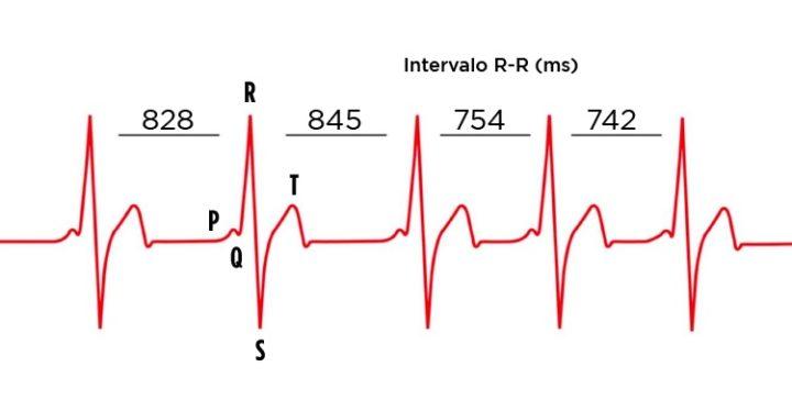 Ilustração da VFC de uma leitura de um ECG de um Apple Watch