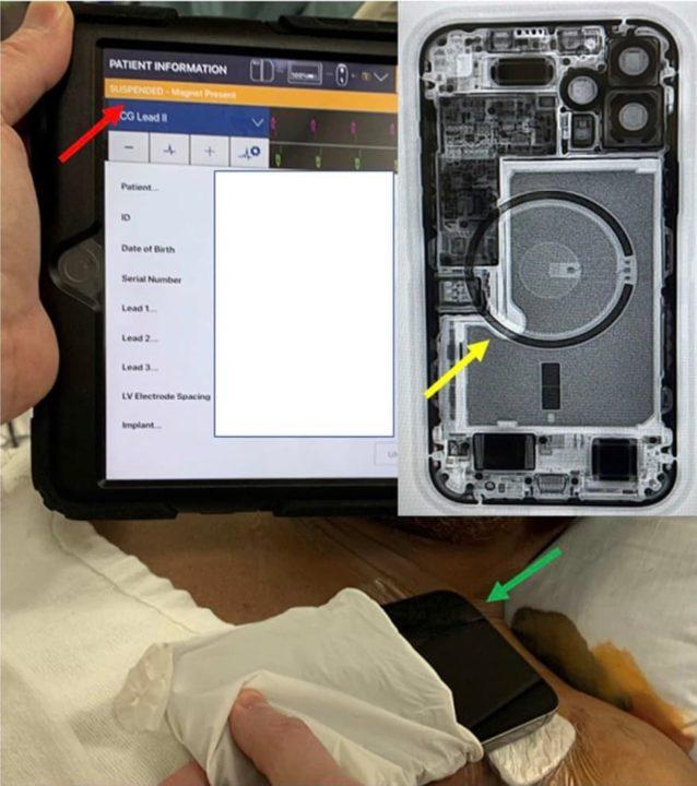Imagem pacemaker desativado pelo IPhone 12