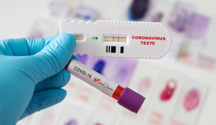 COVID-19: Infetados podem criar anticorpos para toda a vida