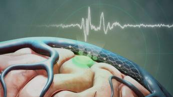 Implante da Synchron