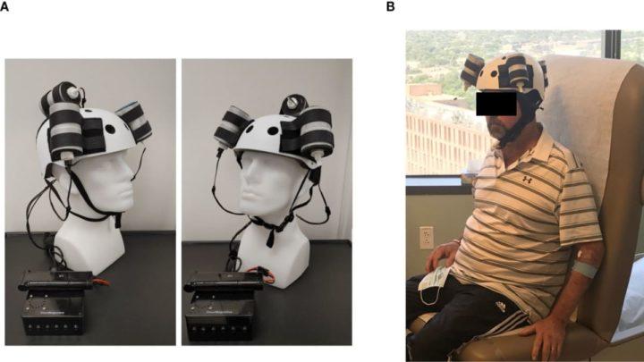 Paciente que utilizou o capacete magnético nos testes