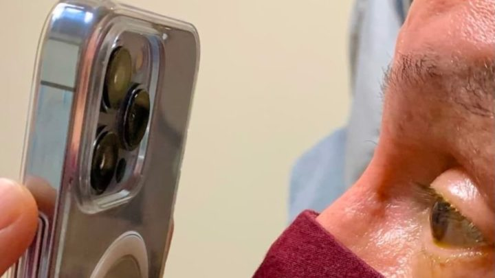 Imagem iphone 13 Pro Max a usar modo macro para monitorizar olhos dos pacientes