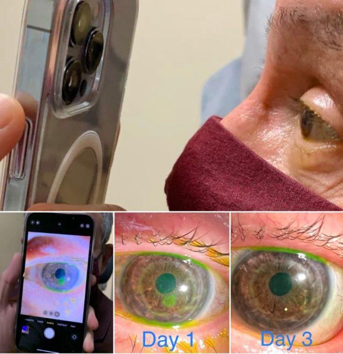 Médico usa câmara do iPhone 13 Pro para tirar imagens macro dos olhos de paciente
